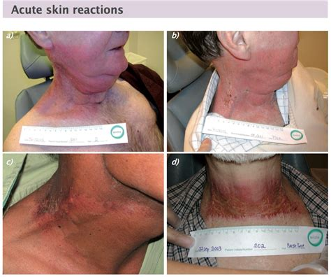 Management Of Acute Radiotherapy Induced Skin Reactions A Literature Review by Radiotherapy Related Skin Reactions Cancerworld