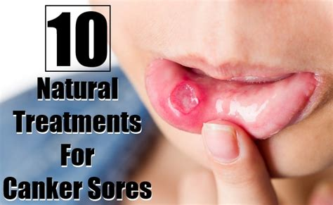 home remedies canker sores treatment