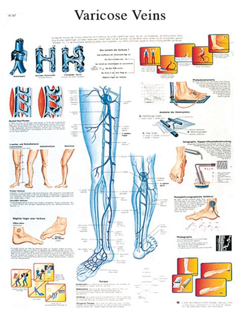 Varicose Veins Chart #VR1367 for sale | Anatomy Now Female Urinary System Anatomy