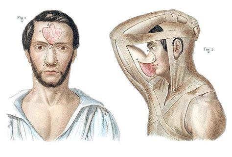 plastic and cosmetic surgery classic reprint books pr 233 cis iconographique de m 233 decine op 233 ratoire et d anatomie
