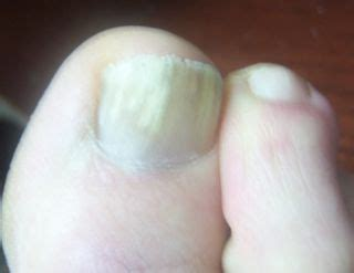 nail fungus fingernails and toenails disabled world