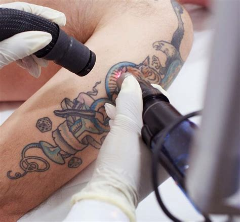 tattoo removal raised skin laser removal maidstone kent just 163 39 per session
