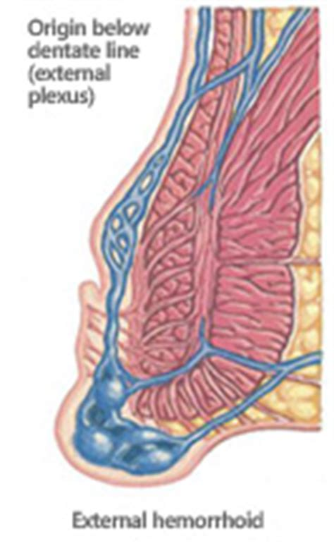 hemorrhoid diagram outpatient surgical hemorrhoids treatment in the ta bay
