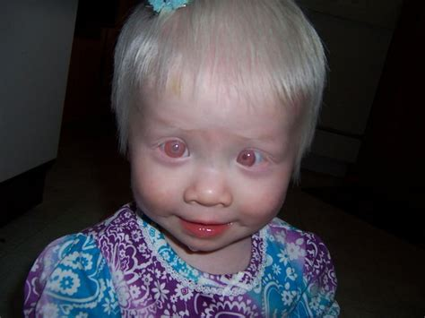 what color do albinos 182 best images about albinos on portrait