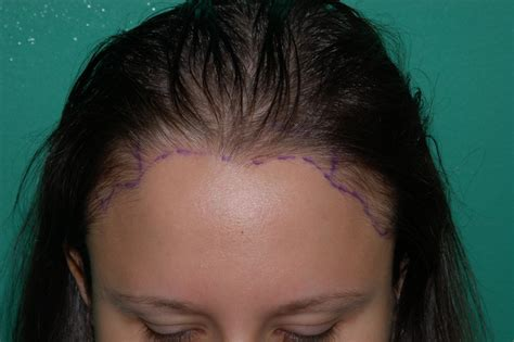 women hairlines women s hair loss chicago gold coast milwaukee
