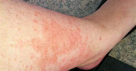 rash related keywords suggestions celiac disease skin rash