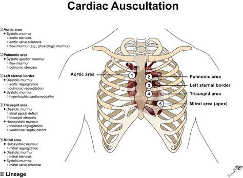 S4 Gaza Murmer 1 murmurs cardiovascular medbullets step 1