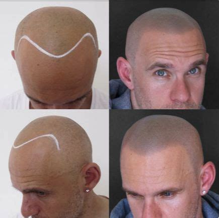 hair tattoo before and after grebeshi before after smp hair loss treatment scalp