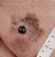 Black Dots Comeing Out Of Skin In Detox Bath by Black Blood Spots On Skin Black Blood Spots On Skin Skin
