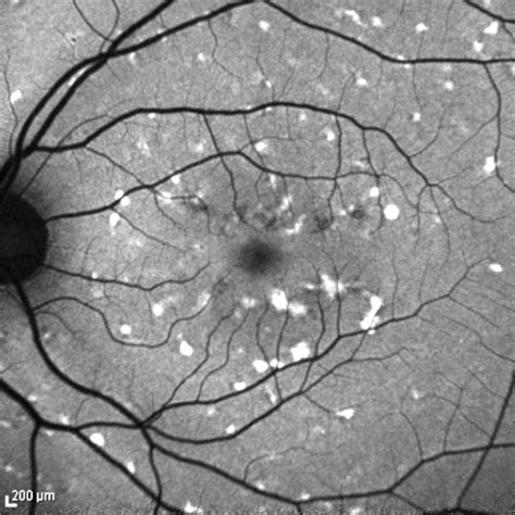 pattern macular dystrophy oct pattern dystrophy simulating fundus flavimaculatus