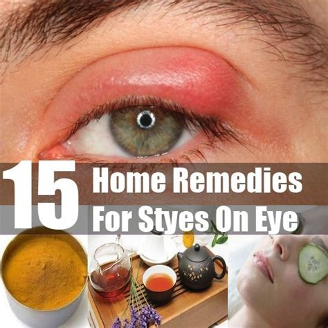 best 25 stye on eye ideas on