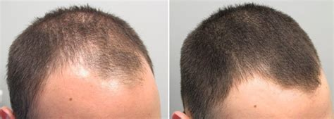 rogaine before and after pictures does rogaine work vertex temple and hairline