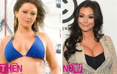 Jenni Jwoww Before And After Plastic Surgery Breast | jennifer lynn farley jwoww plastic surgery before and after