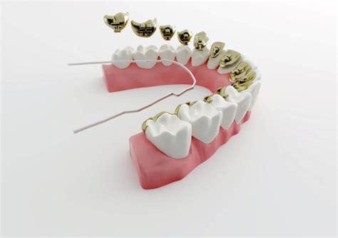 apparecchio denti interno costi apparecchio dentale fisso o mobile trasparente clinica