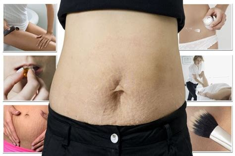 toning stomach after c section exercises to tone stomach after c section exercise to