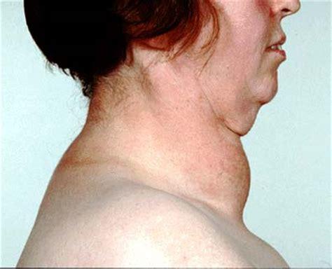 swollen neck goitre thyroid swelling health patient co uk