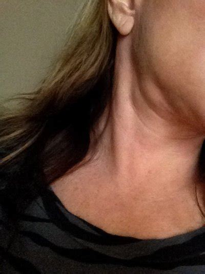 has soft lump on side swelling from lymphs or glands on both sides of my neck that are uncomfortable what