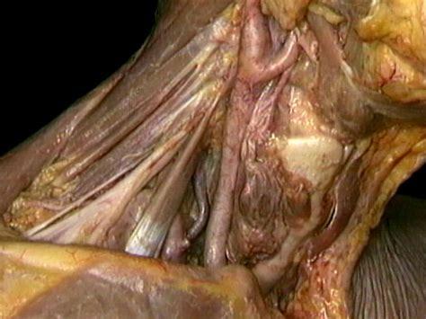 vestibulo anatomia femenina arterias subclavia y car 243 tida 250 n acland video atlas