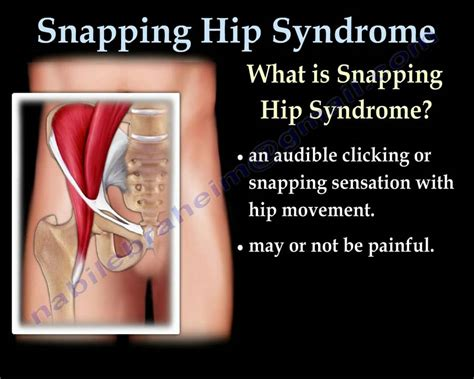 snapping hip syndrome      dr