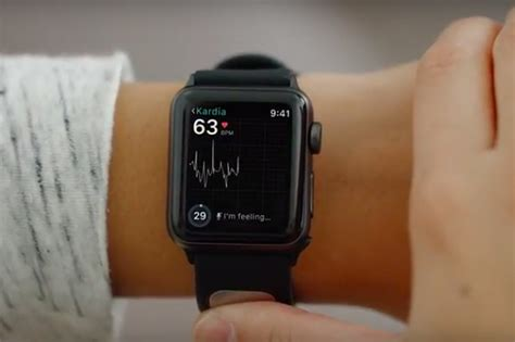 live wallpaper for apple watch fda approves first ekg reader for apple watch sound books