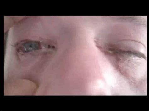 imagenes de ojos infectados conjuntivitis espa 241 ol youtube