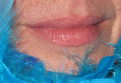 acido ialuronico alimenti acido ialuronico per le labbra come si utilizza