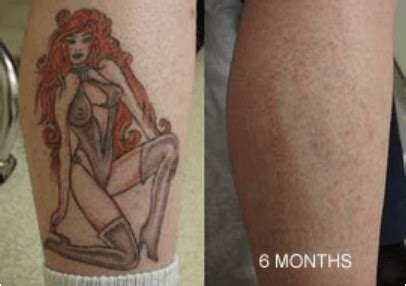 Tattoo Fading Cream Does It Work   does tattoo removal cream work www pixshark com images