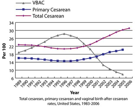 cesarean section rates c section mother of fact