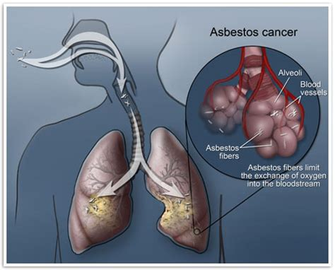 asbestos cancer mesothelioma and lung cancer information