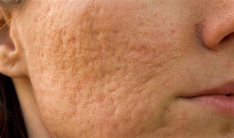 Derma Acne Patch Original cicatrices de acn 233 santanderma