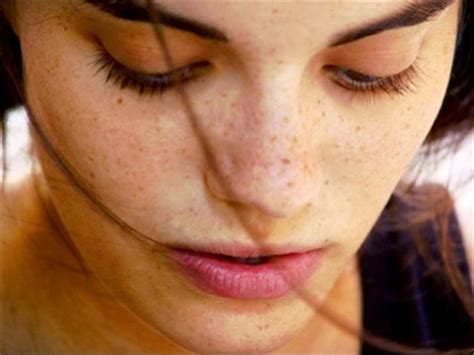 10 Ways To Get Rid Of Freckles by 10 Ways To Get Rid Of Freckles