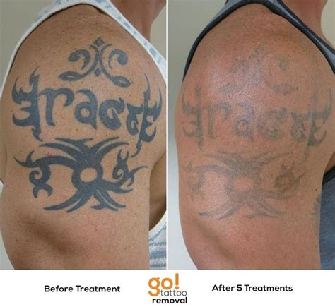 how many tattoo removal sessions 840 best removal in progress images on