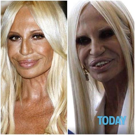 dive rifatte distrutte dal botox il prima e dopo delle loro facce