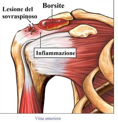 dolore interno spalla destra dolore alla spalla al braccio al collo anteriore