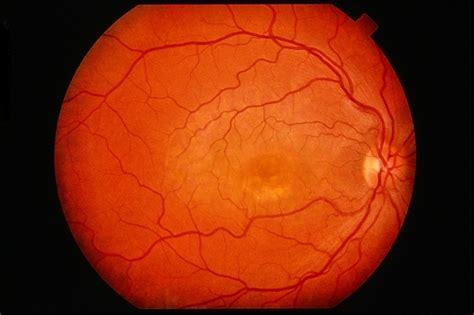 pattern dystrophy reticular reticular pattern dystrophy retina image bank