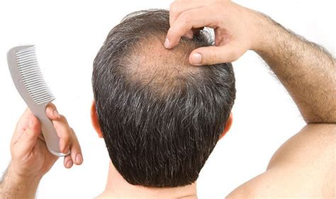 prevent and prolong balding mens health hair loss cure experts reveals what can stop balding