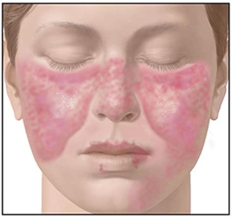 ayurvedic treatment for systemic lupus erythematosus sle dr vikram s ayurvedic and