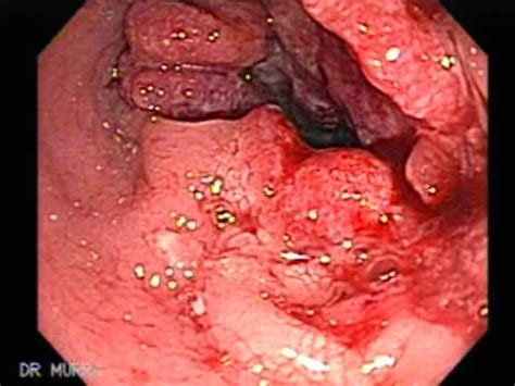 Stool In Rectum by Rectal Cancer And Hemorrhoids