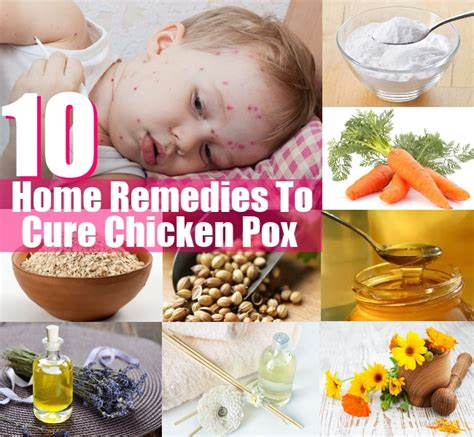 10 top home remedies to cure chicken pox diy home things