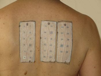 patch test allergy patch test epicutaneous tests eaaci eaaci org