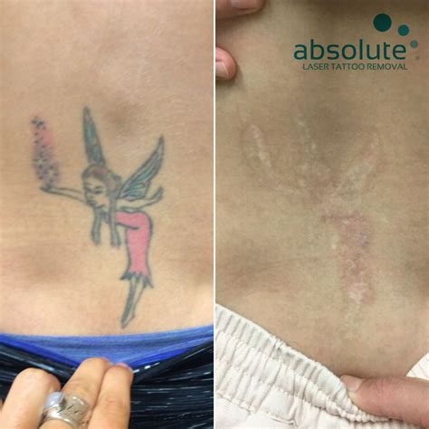 red ink tattoo removal gallary new absolute laser removal