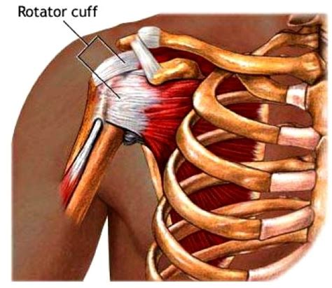 Msm Detox Symptoms Aching Shoulder Arm by Shoulder Exercise Relief Rotator Cuff Tendonitis