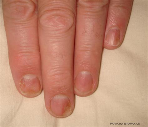 Spots On Fingernails Pictures