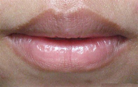 wart on lip infection on pictures photos