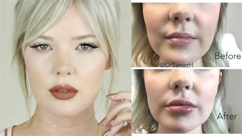 juvederm hair styles how much restylane do you need for lips hairsstyles co