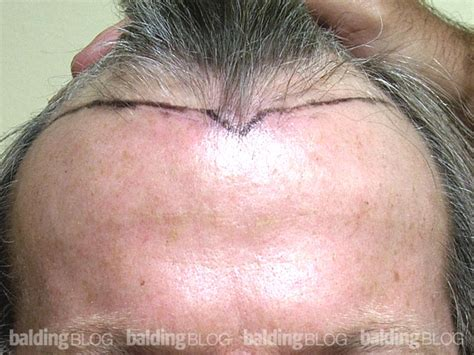 before and after widows peak the transplanted widow s peak with photos wrassman m d