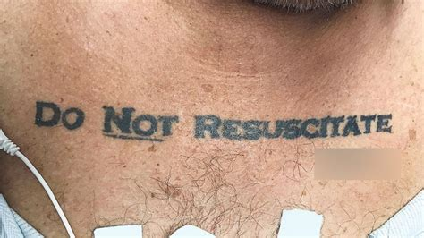 'Do Not Resuscitate' tattoo causes ER ethical dilemma