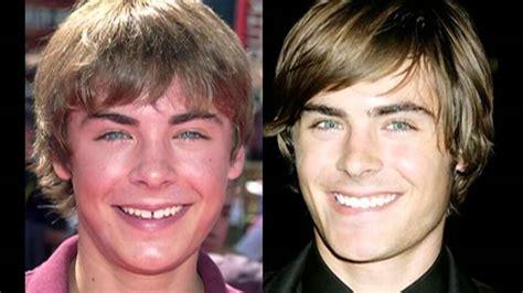 fotos de famosos el sitio 1 de celebridades cambios f 237 sicos de famosos antes y despu 233 s youtube
