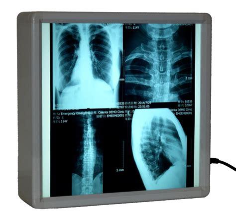 film x ray quiz colenta labortechnik gmbh co kg mediphot x ray film