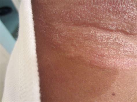 rash on neck itchy rash on back of neck rash on neck itchy lupus heat rash back of neck